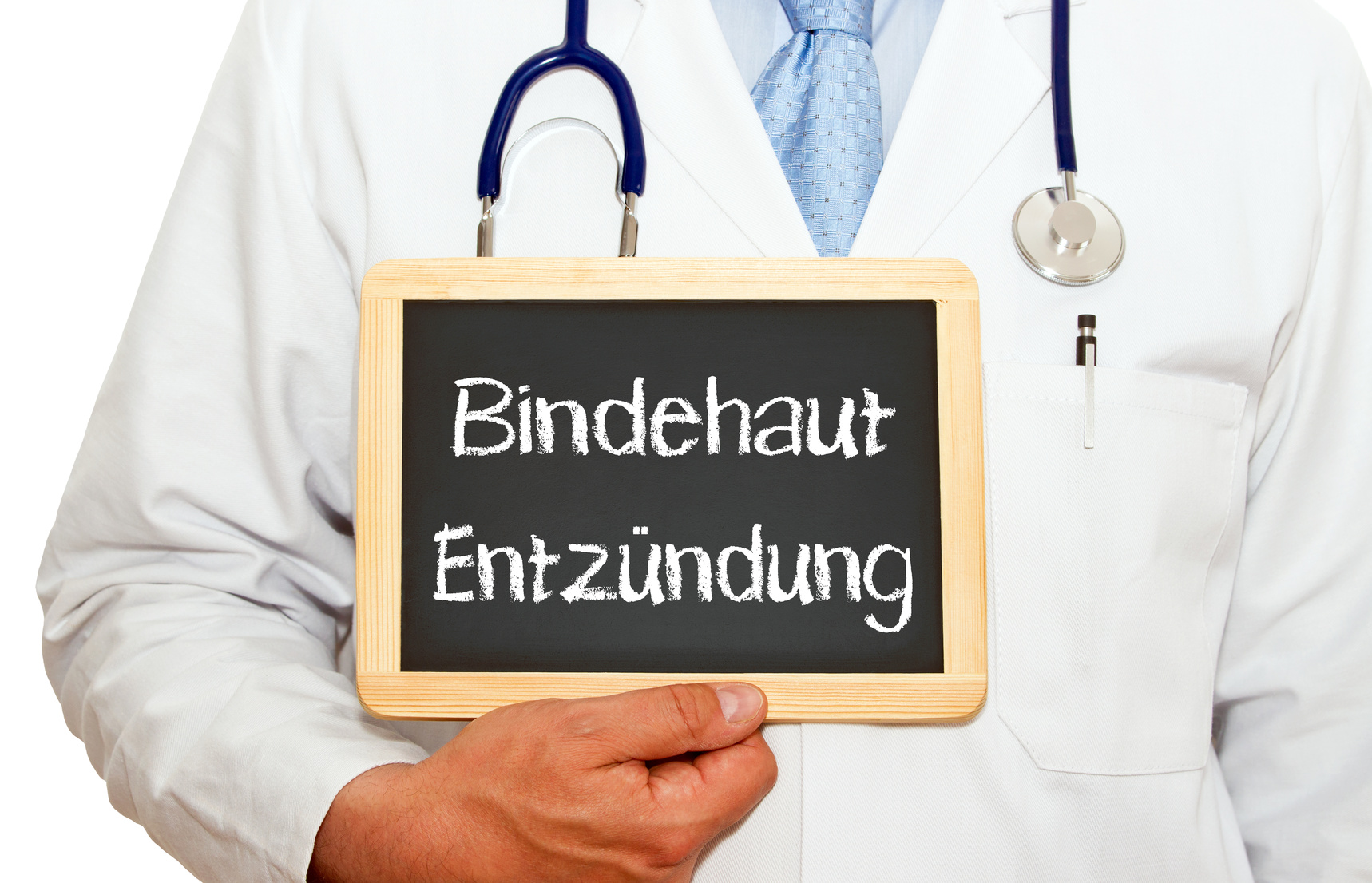 bindehautentzündung