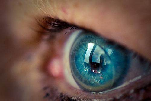 bindehautentzündung kontaktlinsen