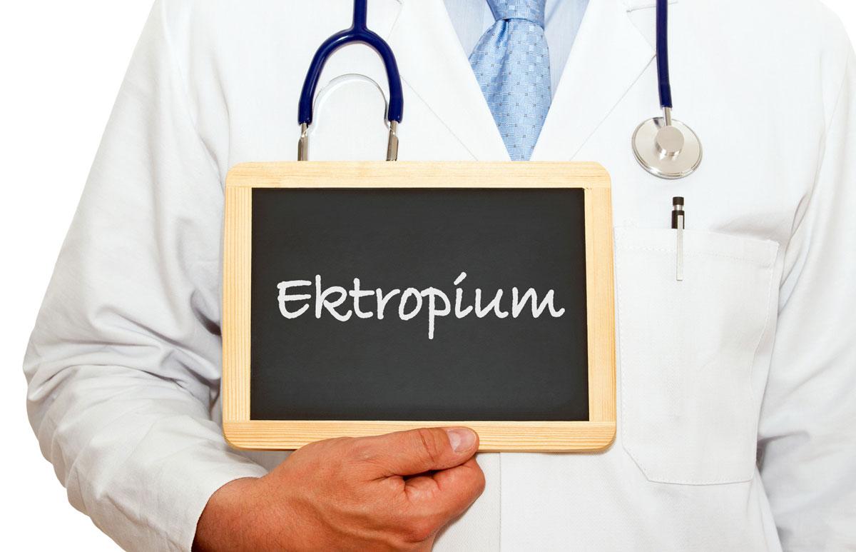 ektropium