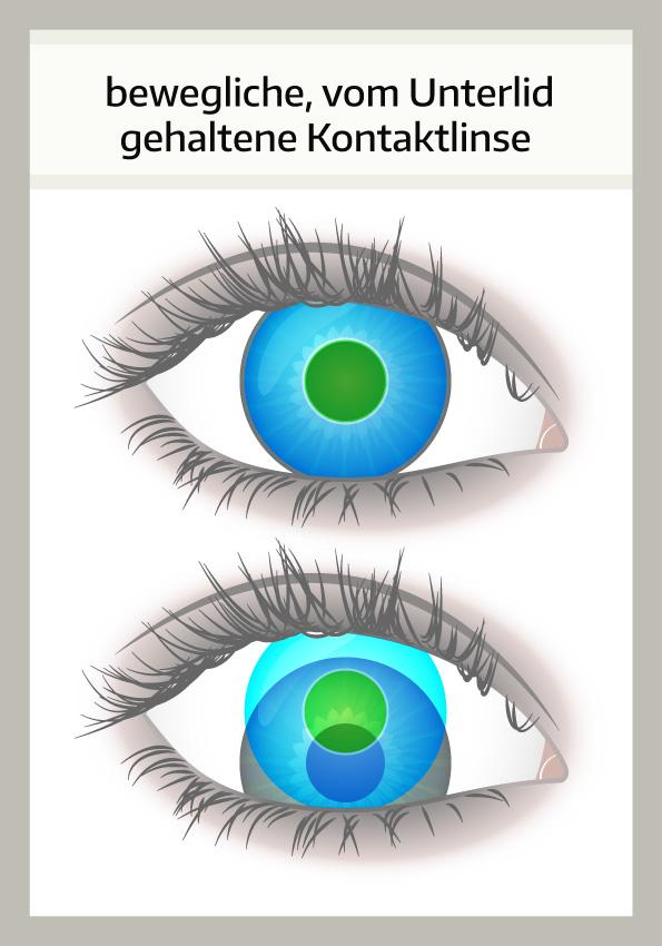 gleitsicht kontaktlinsen